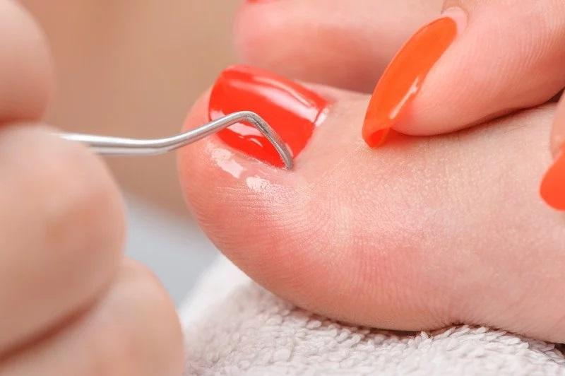 problemy z paznokciami